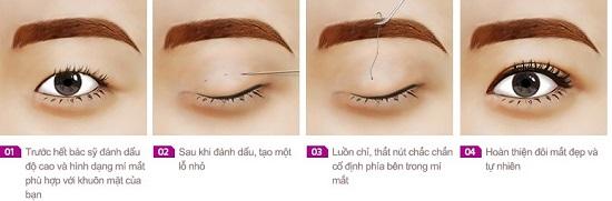 Bấm mí mắt Hàn Quốc giữ được bao lâu?