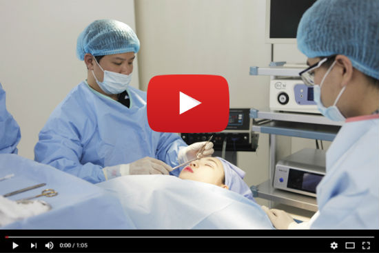 Bấm mí mắt không phẫu thuật – video thực hiện chi tiết