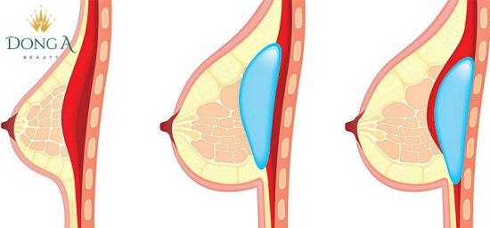Bao xơ sau phẫu thuật nâng ngực có thể xảy ra