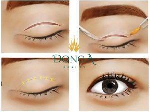 Cắt mí mắt có hại không? Có ảnh hưởng gì đến thị giác không?