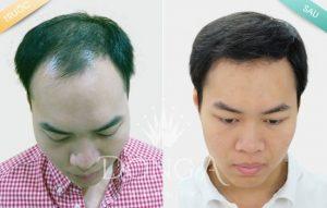 Cấy tóc tự thân có hiệu quả không?