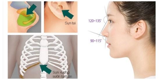 Chất liệu dùng để nâng sửa mũi là gì?