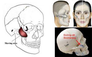Phẫu thuật hạ gò má là gì?