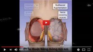 Phẫu thuật nâng mông nội soi là gì?
