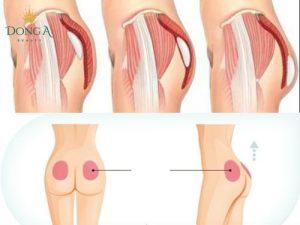 Nâng mông nội soi có đau không thưa bác sĩ?