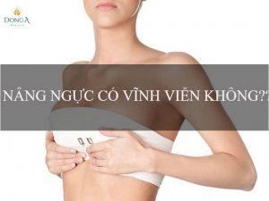 Kết quả sau nâng ngực có vĩnh viễn không?