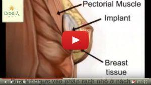 Nâng ngực qua đường nách (video mô phỏng 3D)