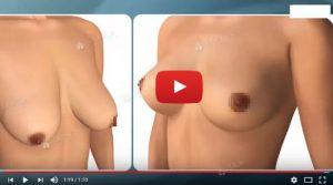 Nâng ngực chảy xệ, cho vòng 1 căng tròn tự nhiên