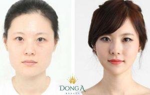 Phẫu thuật gọt mặt là gì?