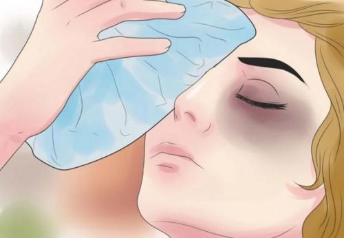 Chăm sóc vết thương sau cắt mí như thế nào? – Hướng dẫn của bác sĩ
