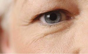 Mí mắt sau 6 tháng cắt đã bị sụp, nguyên nhân do đâu?