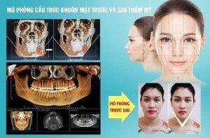 Gọt mặt có nguy hiểm không? – Có nên phẫu thuật gọt mặt không?