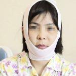 Sau gọt cằm cần làm những gì? – Cách chăm sóc vết thương sau gọt cằm