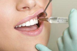 Chữa cười hở lợi không phẫu thuật là như thế nào? Ưu nhược điểm