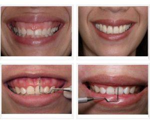 Nguyên nhân và phương pháp chữa cười hở lợi