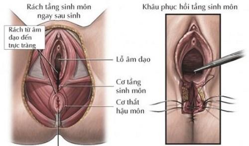 https://hoidapthammy.vn/may-tham-vung-kin-bao-nhieu-tien/