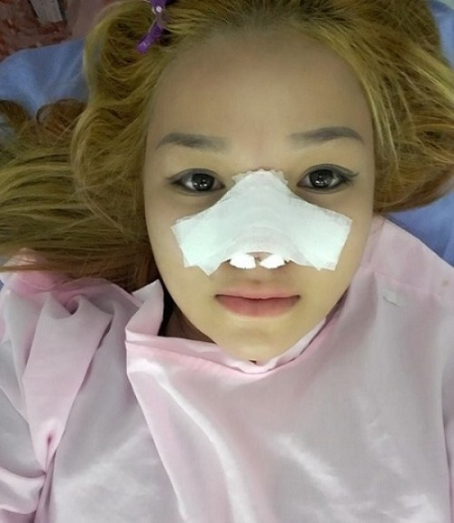 http://hoidapthammy.vn/nang-mui-xong-co-duoc-nam-nghieng-khong/