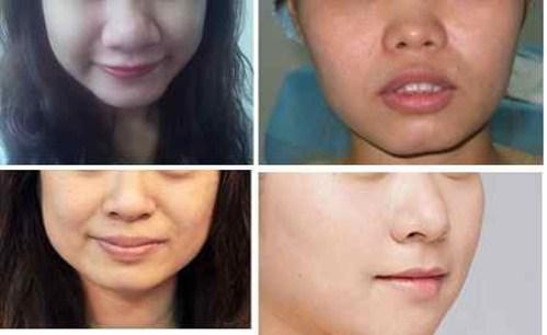 Thu nhỏ đầu mũi có ảnh hưởng hay biến chứng gì không?