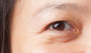 Cắt mí mắt bao lâu hết sưng? Bác sĩ hướng dẫn cách giảm sưng đau sau cắt mí